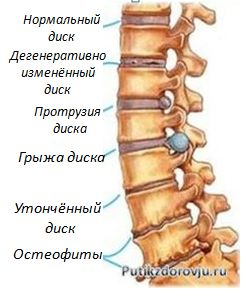 osteohondroz-1
