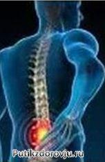 Как лечить остеохондроз в домашних условиях-3