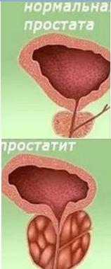 Симптомы простатита у мужчин и его лечение в домашних условиях