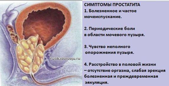 simptomyi-prostatita-u-muzhchin-i-ego-lechenie-v-domashnih-usloviyah-2