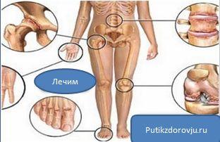 Лечение остеохондроза в домашних условиях-1