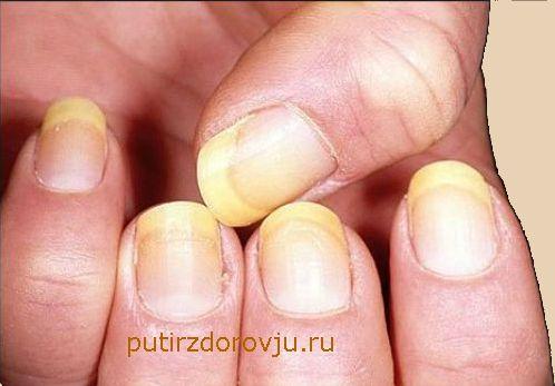 Как укрепить тонкие ногти-2