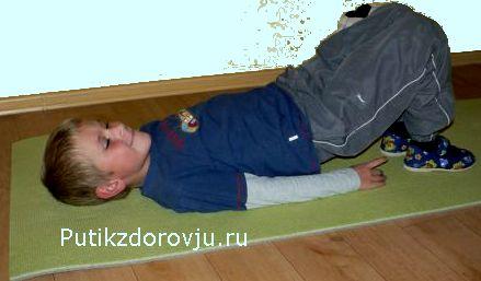 Сутулость у ребёнка – как исправить-9