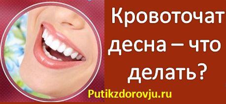 Кровоточивость десен - причины и лечение-1