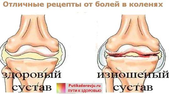 Боль в коленном суставе лечение народными средствами-2