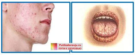 Грибок в организме человека-3