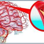 Чистка сосудов головного мозга народными средствами— 16 рецептов