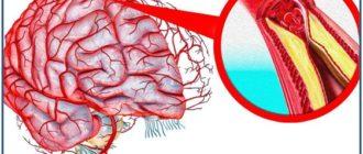 Чистка сосудов головного мозга народными средствами-1.jpg