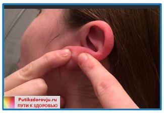 применение йодинола от уплотнение в мочке уха-7