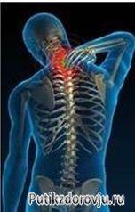 kak-lechit-osteohondroz-v-domashnih-uslovijah-2